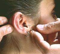 иголки в ухо
